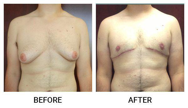 Left Breast Reconstruction