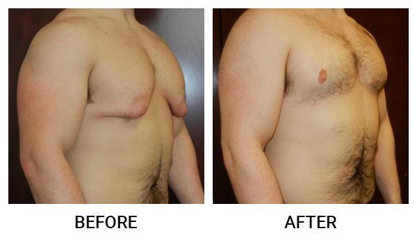 Left Breast Reconstruction